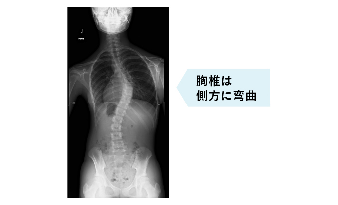 https://www.sokuwan.jp/assets/img/patient/disease/about_img_03.jpg